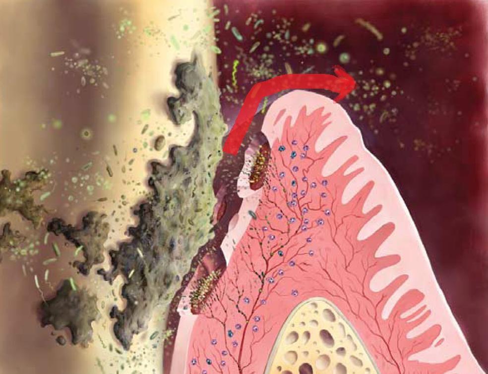 歯周ポケット内からの出血