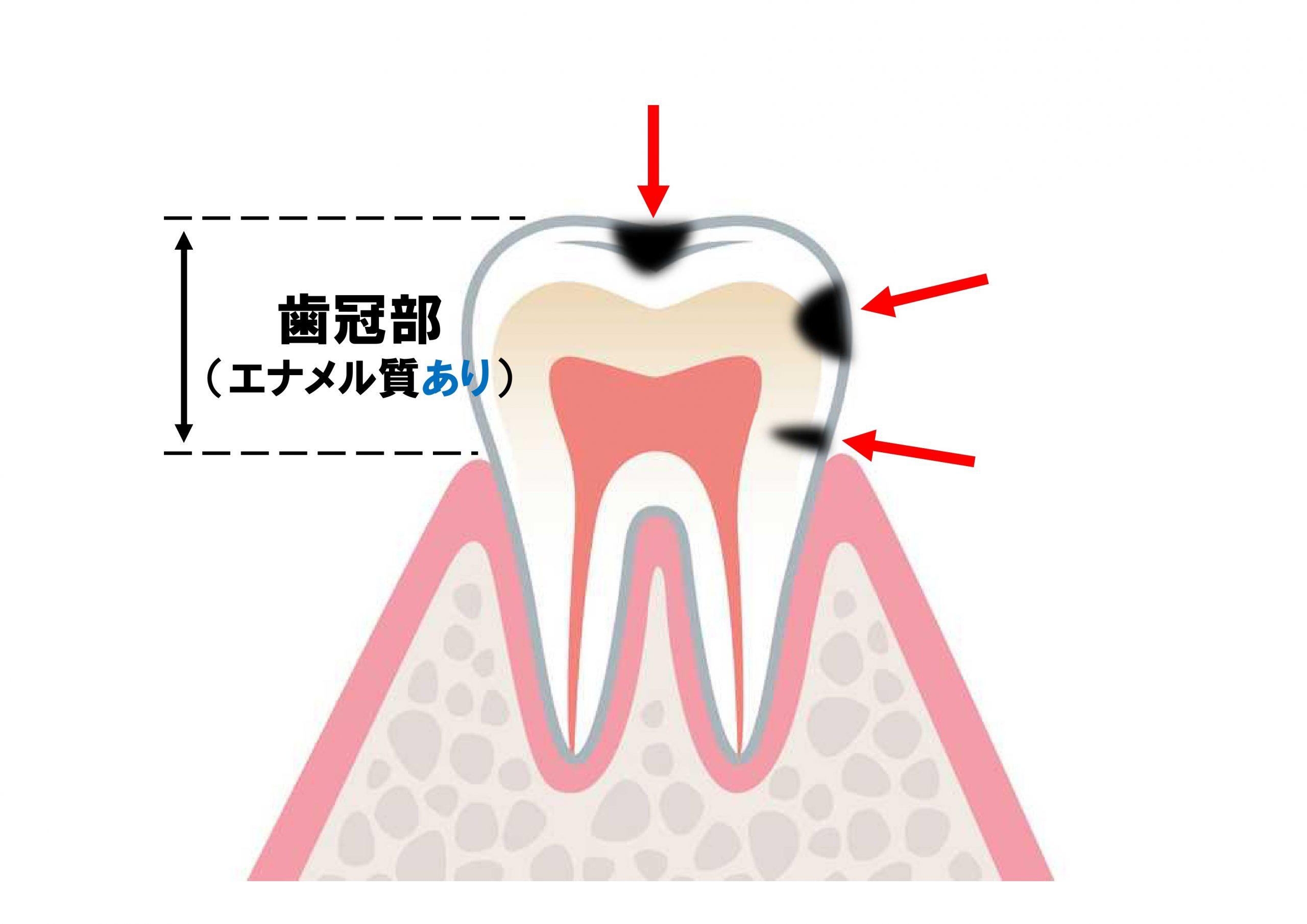 歯冠部う蝕