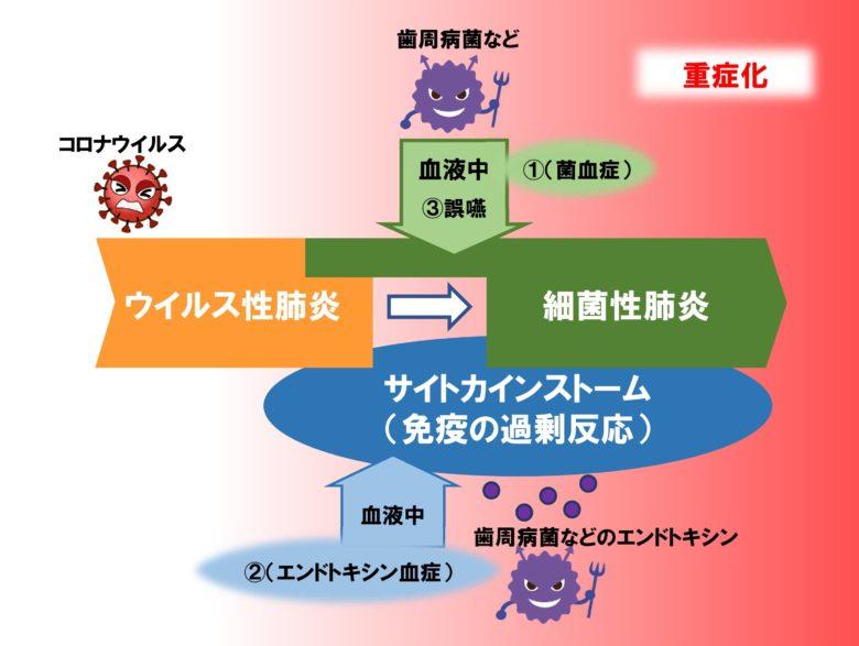 新型コロナウイルス感染症重症化イメージ
