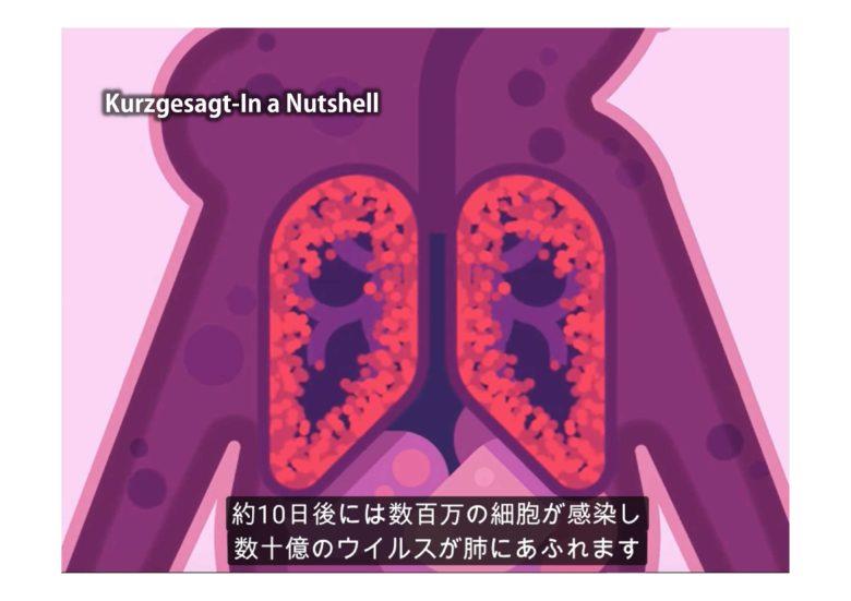 ウイルス性肺炎