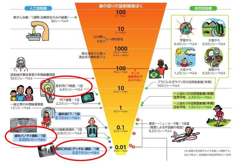 歯科治療のx線撮影は安全です (東京都歯科医師会)