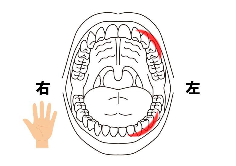 歯磨き時に力が入りやすい部位
